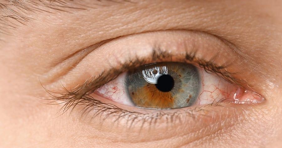 Trockene Augen - Was helfen kann